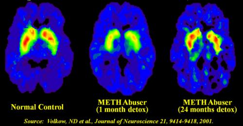 Quá trình 'phá hoại' của ma túy đá đến từng bộ phận cơ thể