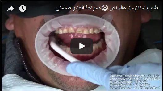 طبيب اسنان من عالم اخر 😷 صراحة الفيديو صدمني