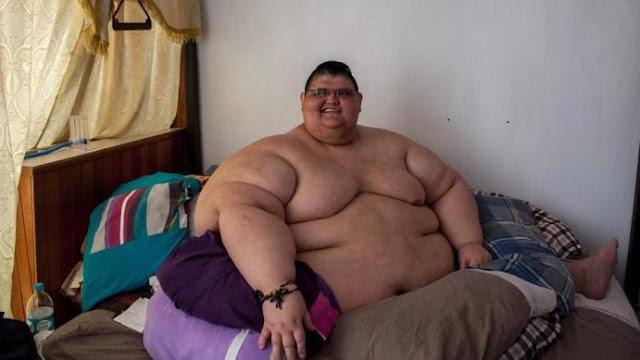 أسمن رجل في العالم خوان بيدرو يفقد 220 كلغم من وزنه