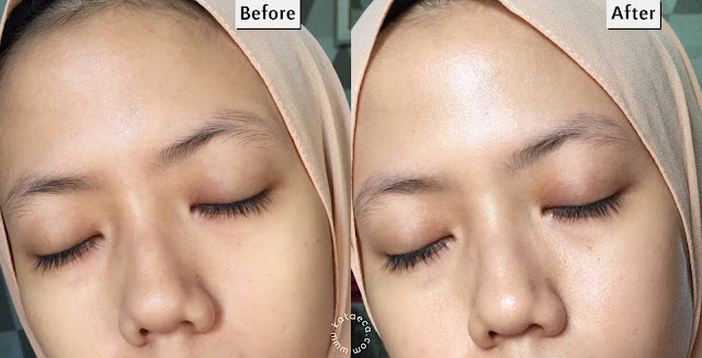before after pemakaian scarlett brightly ever after cream