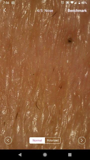 jenis kulit muka sensitif