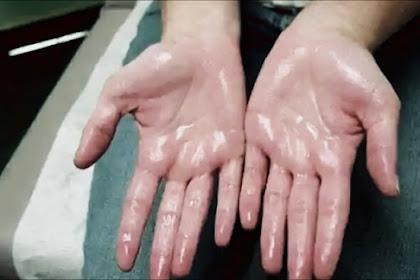 Telapak Tangan Berkeringat Tanda Penyakit Jantung, Itu Cuma Mitos!