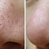 6 Best Home Remedies For Open Pores Treatment