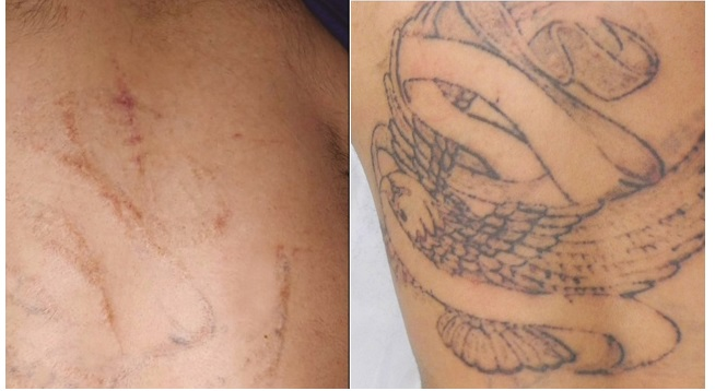 What To Expect From Tattoo Removal