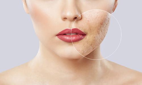 Cómo evitar los poros abiertos