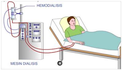 Bagaimana proses hemodialisis?