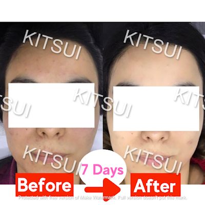 kitsui supplement product, testimonial and review