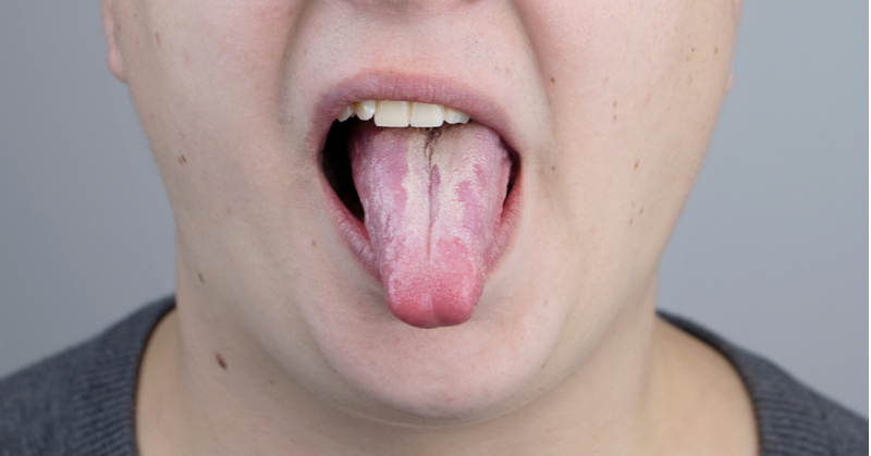 White Plaque on your Tongue