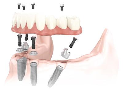 Trồng răng giả cố định bằng cấy ghép implant.