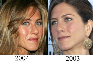 Jennifer Aniston Plastic Surgery Before And After Nose Job