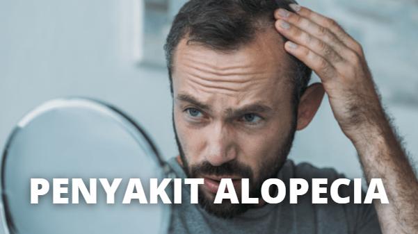 Apa Itu Penyakit Alopecia : Pengertian, Jenis, Tanda dan Gejala, Penyebab, Faktor Risiko Pengertian Alopecia Alopecia adalah kelainan yang terjadi di mana jumlah rambut yang rontok lebih banyak dari rambut yang tumbuh. Pada beberapa kasus, rambut tidak tumbuh kembali dan menyebabkan kebotakan atau bald spot. Rata-rata rambut rontok 25-100 helai rambut per hari. Disebut Alopecia jika rambut rontok lebih dari 100 helai per hari.  Jenis Alopecia Berikut ini adalah 3 jenis Alopecia, yang diantaranya adalah sebagai berikut : Alopecia Areata  Alopecia Areata adalah botak di beberapa titik Alopecia Totalis Alopecia Totalis adalah botak seluruh kulit kepala Alopecia Universalis Alopecia Universalis adalah botak seluruh rambut tubuh Tergantung pada penyebabnya, kondisi ini dapat terjadi sementara atau dapat berlangsung lebih lama. Alopecia dapat menyebabkan stress, namun alopecia dapat menjadi suatu tanda penyakit lain.  Tanda dan Gejala Alopecia Alopecia memiliki berbagai gejala dan tanda tergantung penyebabnya. Alopecia dapat terjadi secara mendadak atau bertahap dan dapat terjadi sementara atau permanen. Alopecia dapat terjadi pada kulit kepala atau bahkan seluruh tubuh. Berkut adalah beberapa gejala dan tanda alopecia : Rambut rontok lebih dari 100 helai per hari Terkadang muncul rasa terbakas atau sensasi gatal Kulit yang botak biasanya mulus, berbentuk bulat, dan berwarna peach Alopecia areata ; kulit yang botak dapat berbentuk lingkaran. Biasanya rambut rontok terjadi di kulit kepala, namun pada beberapa kasus, alopecia dapat terjadi di janggut atau alis Alopecia totalis ; rambut sangat mudah rontok saat menyisir rambut. Alopesia jenis ini biasanya menyebabkan penipisan rambut Alopecia universalis ; kemoterapi kanker dapat menyebabkan alopecia, biasanya rambut tumbuh kembali setelah itu  Penyebab Alopecia Penyebab pasti alopecia masih belum diketahui pasti, namun para ahli medis menyatakan bahwa alopecia berhubungan dengan beberapa faktor, yang diantaranya sebagai ber