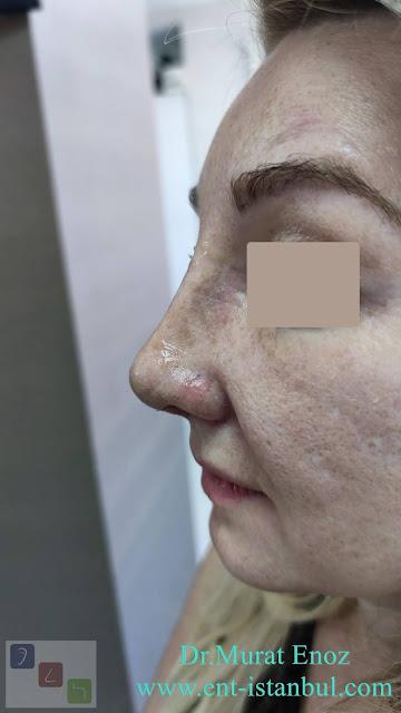 1 week after rhinoplasty