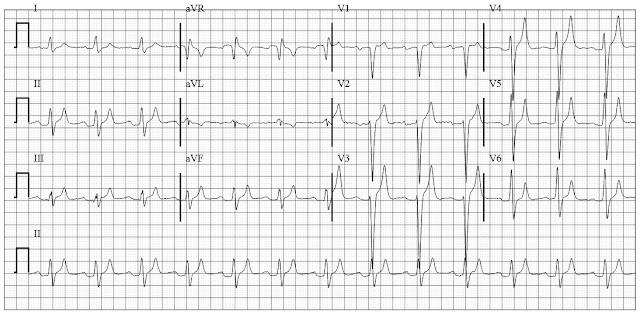 ECG of Renal failure with severe hyperkalemia