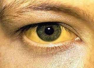 sarılık hastalığı testi