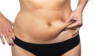 liposuction-vs-tummy-tuck