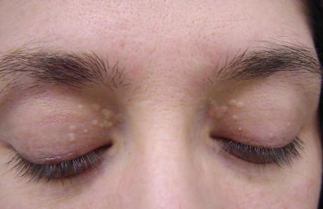 Kolesterol Tinggi - bintik-bintik putih kecil yang timbul sekitar mata