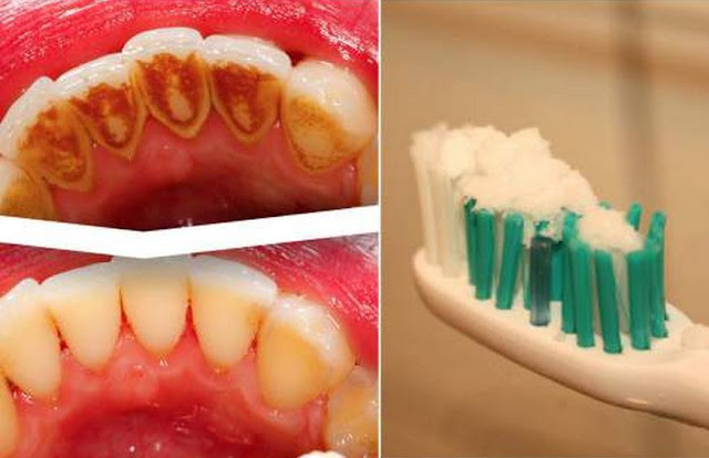 Remove and Clean Teeth Tartar, Plaques, and Whiten Teeth using Baking Soda