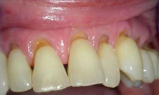 toothbrush-damage-teeth-toothbrush-damage-gums