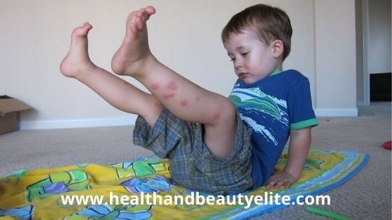 Itching caused by mosquito bites, Treatment is very easy