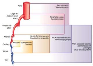 pembagian-vaskulitis