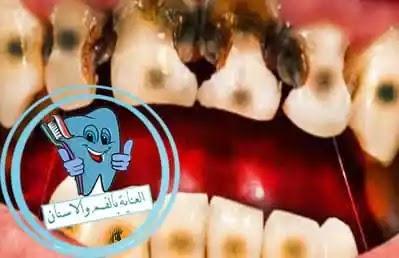 علاج تسوس الاسنان, علاج تسوس الاسنان بالطب النبوي, علاج تسوس الاسنان بالثوم, علاج تسوس الاسنان بدون طبيب, علاج تسوس الاسنان الامامية, علاج تسوس الاسنان بالاعشاب, علاج تسوس الاسنان عند الاطفال 3 سنوات, علاج تسوس الاسنان بدون حشو, علاج تسوس الاسنان بالقران, علاج تسوس الاسنان في المنزل, علاج تسوس الاسنان عند الاطفال, علاج تسوس الاسنان بالقران الكريم, علاج تسوس الاسنان للاطفال, علاج تسوس الاسنان طبيعيا, علاج تسوس الاسنان عند الطبيب, علاج تسوس الاسنان الامامية بالاعشاب, علاج تسوس الاسنان بالاعشاب الطبيعية, علاج تسوس الاسنان الامامية عند الاطفال, كيفية علاج تسوس الاسنان بدون طبيب, علاج تسوس الاسنان الامامية بالليزر, علاج تسوس الاسنان بالليزر, كيفية علاج تسوس الاسنان, علاج تسوس الاسنان اللبنية عند الاطفال, علاج تسوس الأسنان, علاج تسوس الاسنان بالقرنفل, معالجة تسوس الاسنان طبيعيا, كيفية علاج تسوس الاسنان طبيعيا, ما علاج تسوس الاسنان, علاج تسوس الاسنان للحامل, علاج الم تسوس الاسنان بالاعشاب, كيفية علاج تسوس الأسنان, علاج الم تسوس الاسنان في المنزل, علاج تسوس الاسنان بالكركم, علاج تسوس الاسنان للكبار, وصفة لعلاج تسوس الاسنان, علاج تسوس الاسنان بالفلورايد, ماهو علاج التسوس الاسنان, علاج الام تسوس الاسنان, علاج تسوس الأسنان عند الأطفال, علاج تسوس الاسنان عند الاطفال في المنزل, علاج تسوس الأسنان طبيعيا, طريقة علاج تسوس الاسنان, افضل طريقة لعلاج تسوس الاسنان, معجون لعلاج تسوس الاسنان, لعلاج تسوس الاسنان, علاج تسوس الاسنان عند الاطفال بالاعشاب, كيف يمكن علاج تسوس الاسنان, علاج تسوس الاسنان بالمنزل, علاج تسوس الاسنان الامامية في المنزل, علاج تسوس الاسنان فى المنزل