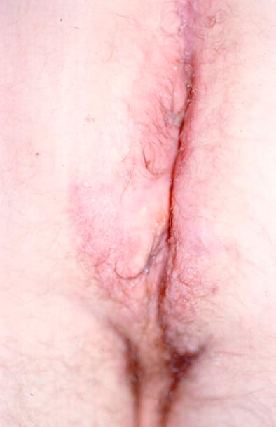 克罗恩病肛周的肉芽肿性皮损