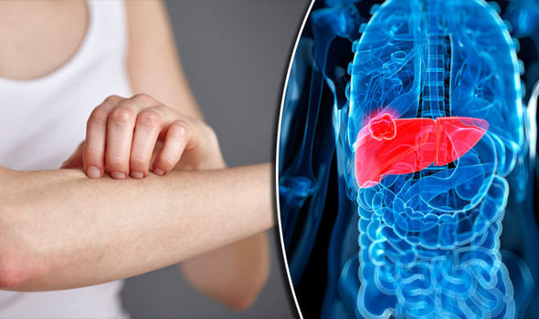 11 Signs That Your Body Sends You To Tell You That Your Liver Is Sick