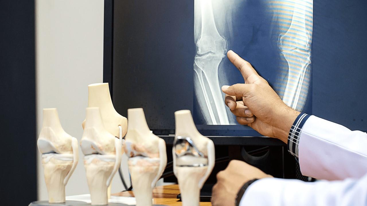 harapan-bagi-penderita-osteoporosis-berisiko-tinggi-platform-kecerdasan-buatan-yang-terintegrasi-dengan-bioteknologi-dan-obat-obatan