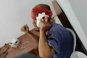 Polisi Buru Pelaku Pembacokan Sopir Elf di Pakenjeng-Garut
