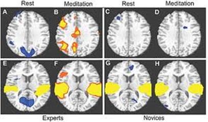 Neurosains Kognitif: Pengertian, Studi-studi, dan Teknik atau Metode