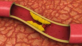 حقنة للتخلص من الكولسترول السيئ في الجسم!