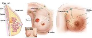 obat kanker payudara ganas
