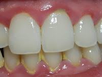 7 Cara Paling Mudah Menghilangkan Karang Gigi