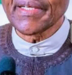 Hole in Buhari's Neck