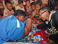 Arya Permana, Bocah Indonesia Tergemuk di Dunia yang Jadi Perhatian Media Asing