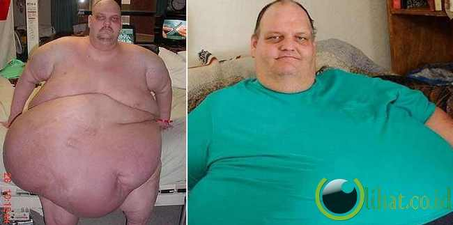 Patrick D. Deuel - 410 kg