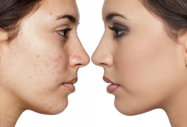 Konsultasi Saran Dokter Cara Mengatasi Jerawat dan Flek Bintik Hitam di Wajah