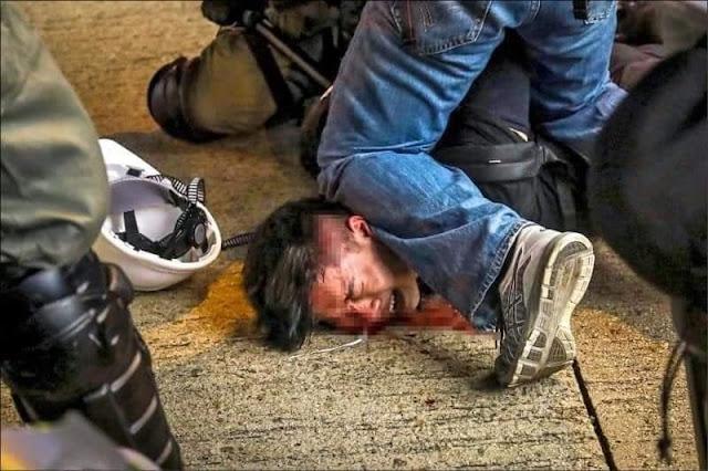 Đứng vững trên quê hương mình với sự đàn áp hung bạo của Cảnh sát