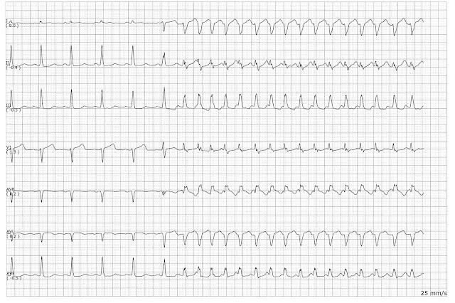Telemetry Technician Course: Practice EKG Quiz