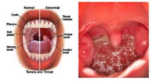 Natural Remedies for Tonsillitis in Children