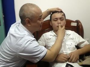 Resultado de imagem para Médicos chineses avaliam nariz que cresce na testa de paciente fotos