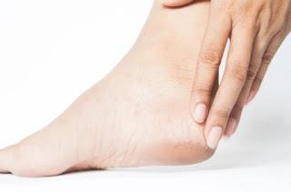 علاج تشقق القدمين ووصفات طبيعية لتنعيم القدمين في المنزل