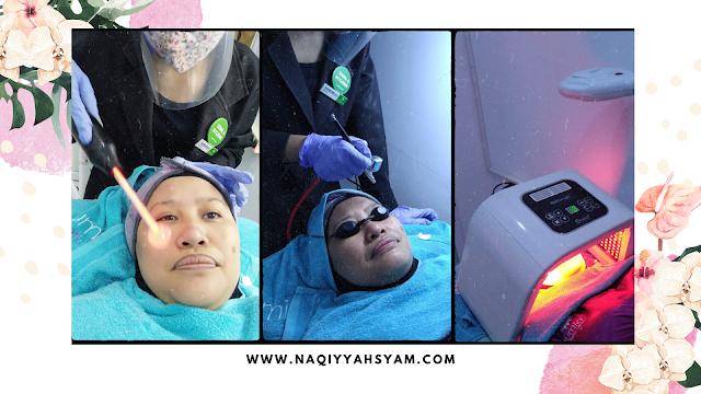 harga perawatan di Sumia Aesthetic Clinic  Lampung