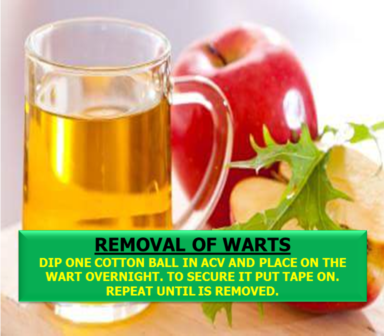 Apple cider vinegar is one of the oldest and most useful remedies you can find in our kitchen.