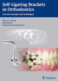 Self-ligating Brackets in Orthodontics by Ludwig & Bister