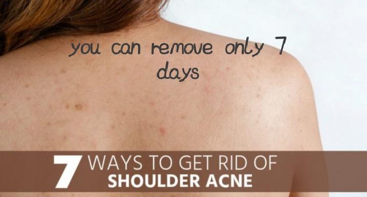 Shoulder Back Acne Remove Health Care