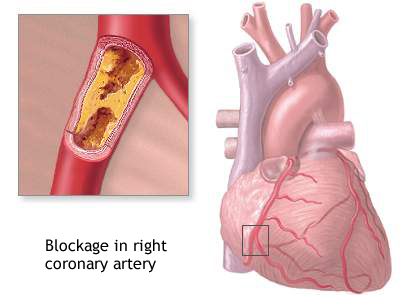 Right coronary artery blockage