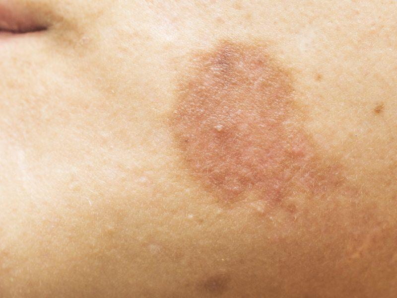 Tàn nhang, vết bớt, vết đen là tình trạng tăng sắc tố da do melanin sản xuất quá mức