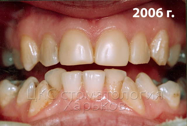 4 года эксплуатации изменили вид реставраций зубов