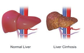 normal liver and one having a liver disease